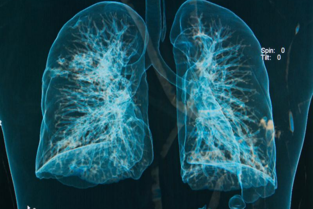 Lung x-ray - silicosis