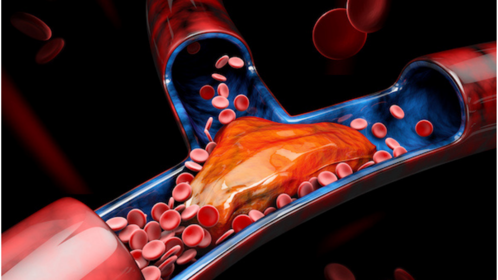 Blood Clots & Embolism: 3d Illustration of Deep Vein Thrombosis (DVT)
