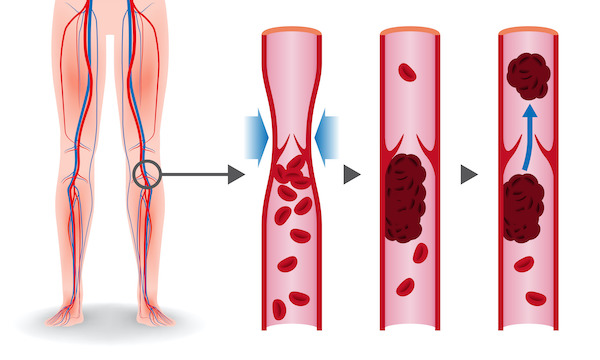 A depiction of a deep vein thrombosis forming in the lower extremities just below the venous valve, followed by its dislodgement into the blood circulation from where it can reach the heart or the brain.