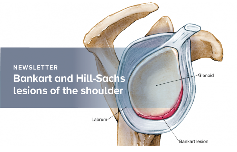Bankart and Hill-Sachs lesions of the shoulder joint