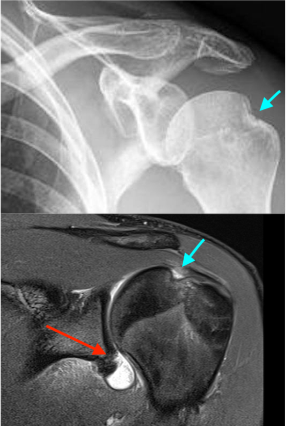 Bankart Lesion at the antero-inferior part of the glenoid labrum (red arrow) and Hill-Sachs lesion of the humeral head (blue arrow) on X-ray image above and MRI scan below.