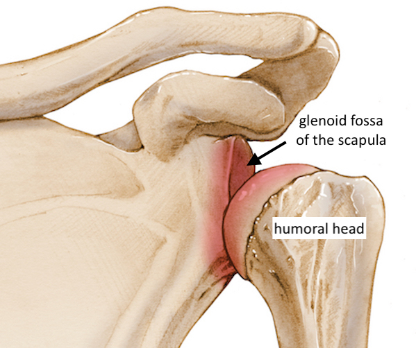 Illustration of an anterior shoulder dislocation whereby the humeral head slips out of the anterior side of the glenoid fossa