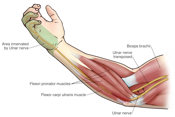Surgical ulnar nerve transposition. The arrows show the transfer of the ulnar nerve upwards to reduce friction