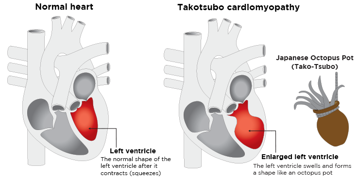 Broken heart syndrome: Drawing of a normal heart (left) and a heart with takotsubo cardiomyopathy (right) showing the abnormal/enlarged shape of the left ventricle resembling a Japanese octopus trap