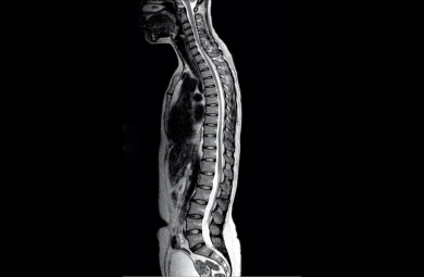 Discogenic pain- Back pain without visible structural disc damage