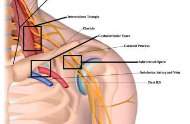 Thoracic Outlet Syndrome for medico legal example